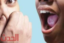 Photo of رائحة الفم الكريهة.