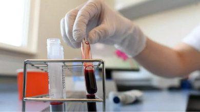 Photo of الصحة: شرطان لتبرع متعافي فيروس كورونا ببلازما الدم